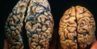 animal_human_brain