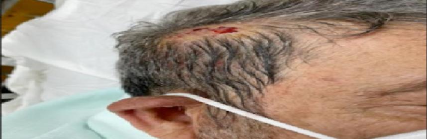 Ralph Gonsales struck in the head.